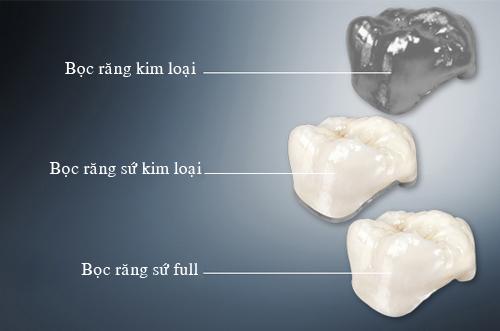 răng sứ sử dụng được bao lâu -10