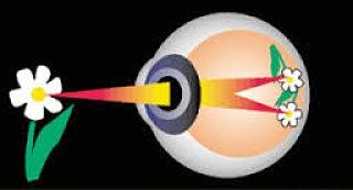 Cara Mengurangi Mata Minus Tanpa Operasi