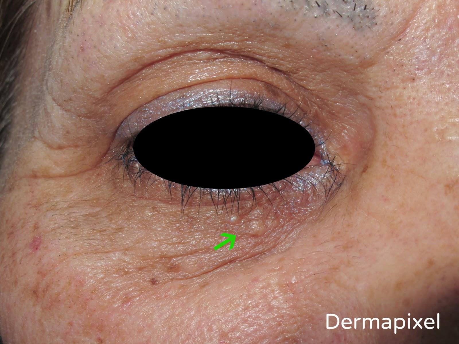 Debajo De Ojos Granos Los Dermapixel Unos Eq6ng