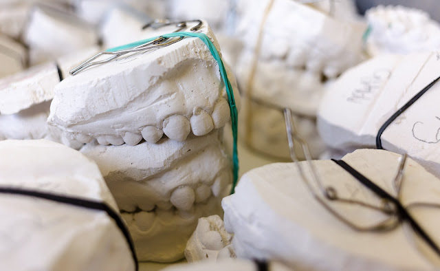 dental moulds | Almost Posh