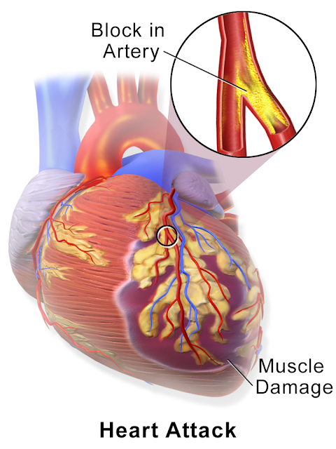 Common Heart Attack Signs and Symptoms