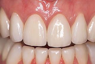 verre ionomère dentaire