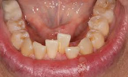 "<Img src =""apiñamiento-dental-moderado.jpg"" width = ""638"" height ""344"" border = ""0"" alt = ""Solape o apiñamiento dental anterior tardio."">"