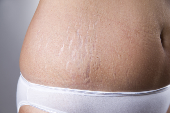 Here's How to Get Rid of Stretch Marks