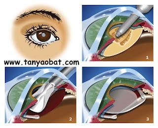 www.tanyaobat.com