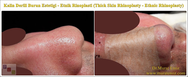Kalın derili burun estetiği algoritması - Kalın derili rinoplasti - Thick skin rhinoplasty in İstanbul - Kalın derili burun estetiği teknikleri - Kalın derili burun estetiği nasıl yapılır? - Kalın derili burun estetiği en iyi teknik hangisidir? - Etnik burun estetiği - Ethnic rhinoplasty in nen  Istanbul - Ethnic nose job in Istanbul - Ethnic nose surgery in men Istanbul - Nose job in Turkey - Ethnic rhinoplasty in men Turkey - Ethnic rhinoplasty in Turkey - - Ethnic expert nose job surgeon - Ethnic rhinoplasty surgeon in Istanbul - Black nose job - Rhinoplasty for ethnic nose in men - Thick skin rhinoplasty - Thick skin rhinoplasty in men istanbul