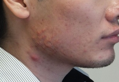 Acne On Neck And Jawline