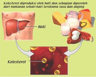 Faktor Penyebab Tingginya Kolesterol Dalam Darah