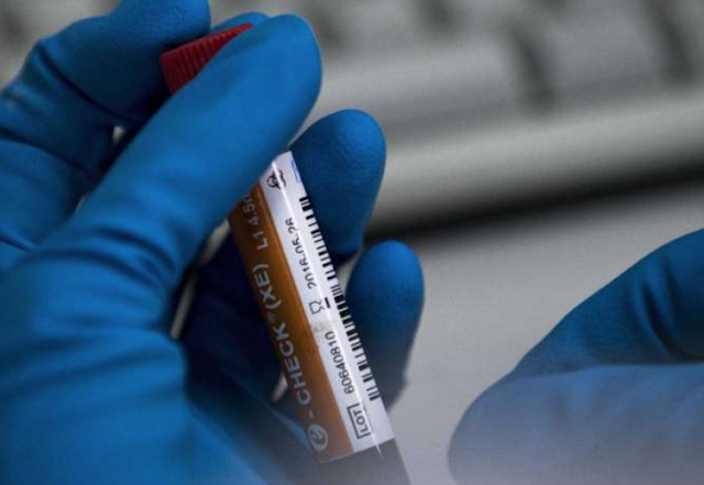 Why drug testing at work 'is the new don't ask, don't tell'