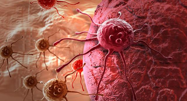 Científicos españoles descubren las células que inician la metástasis del cáncer