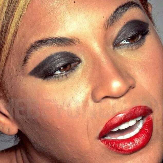 beyonce acne face
