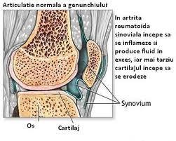 boala still de la dureri articulare la nivelul umerilor