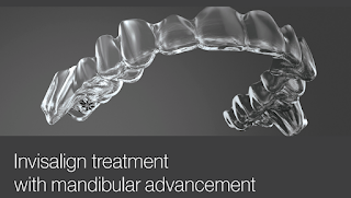 Mandibular advancement Invisalign in Toronto