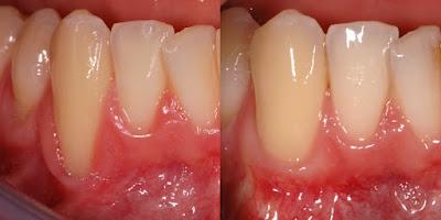 11 Natural Home Remedies for Receding Gum Disease