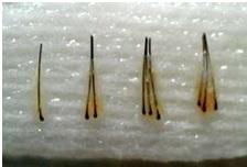 La realidad de los implantes capilares en España