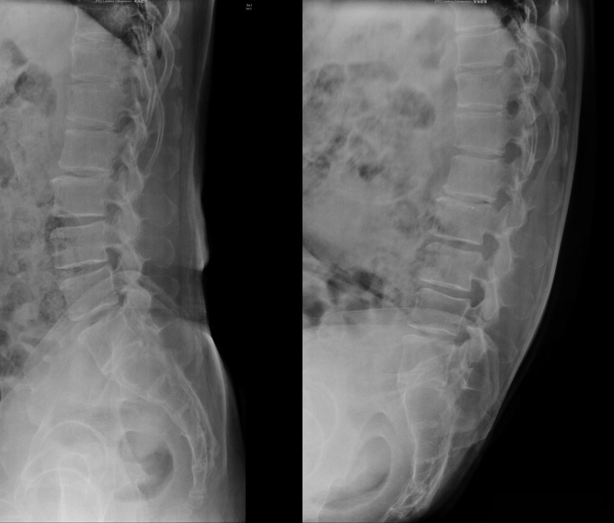 脊椎手術 鄞宗誠醫師 (Tsung-Cheng Yin , MD): 微創脊椎內視鏡手術 (二)