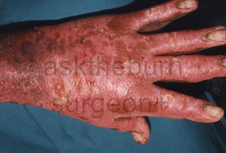 Burn scar reference: unhealed 2nd degree deep burns ...