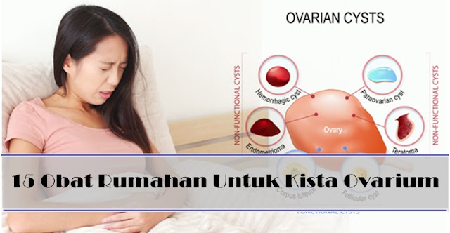 15 Obat Rumahan Untuk Kista Ovarium