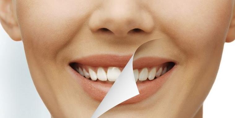 Cara dan tips Memutihkan Gigi Dengan Baking Soda, Garam, Lemon Dan Cuka