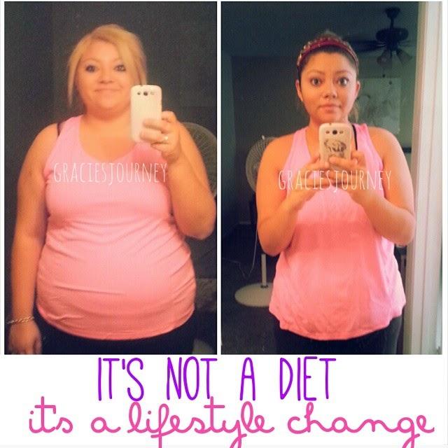 weight-loss-surgery