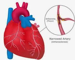 Cara ampuh mengatasi pembengkakan jantung