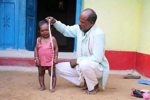 Basori Lal: 50-Year-Old Man Who Stopped Growing At Age 5