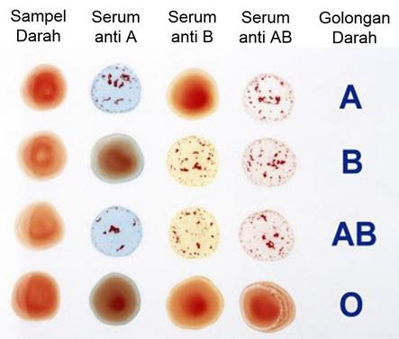 Golongan Darah Sistem Abo Info Pendidikan Dan Biologi