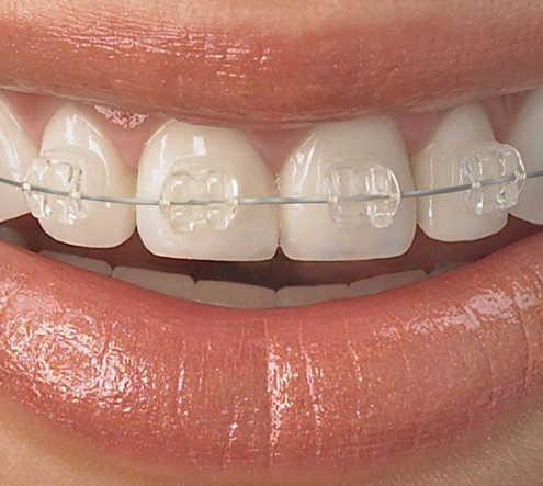 niềng răng bằng sứ