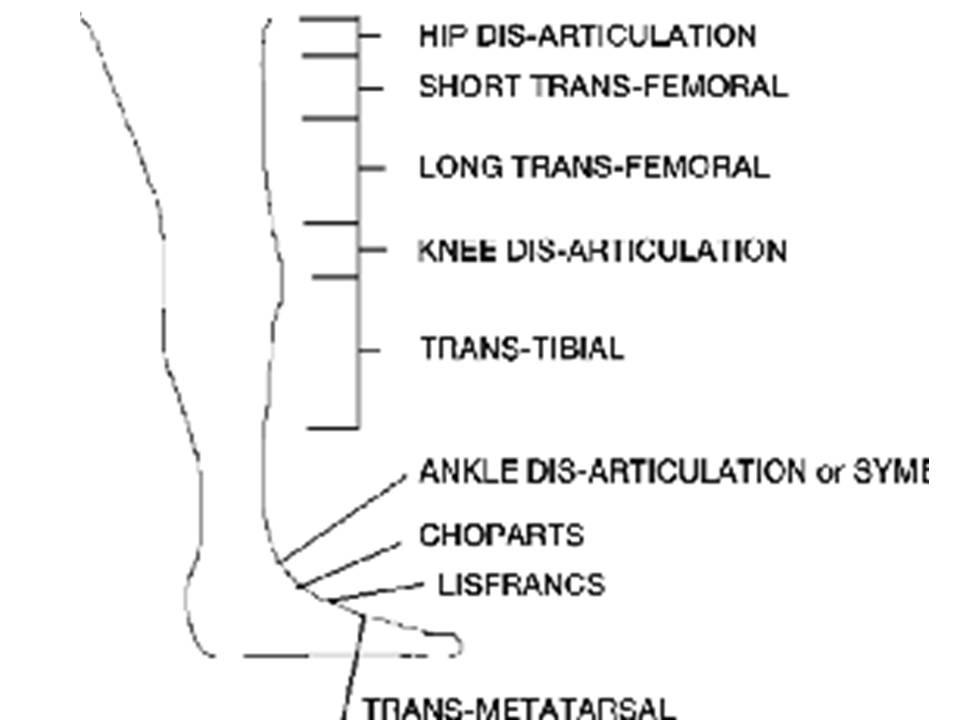 Below Knee Amputation | Fathia Arsyiana