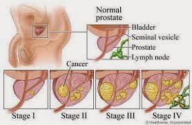 gejala kanker prostat pada pria