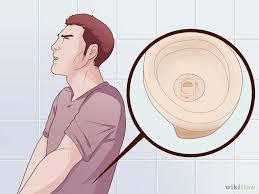 Bagaimana caranya mengatasi kencing keluar nanah secara alami