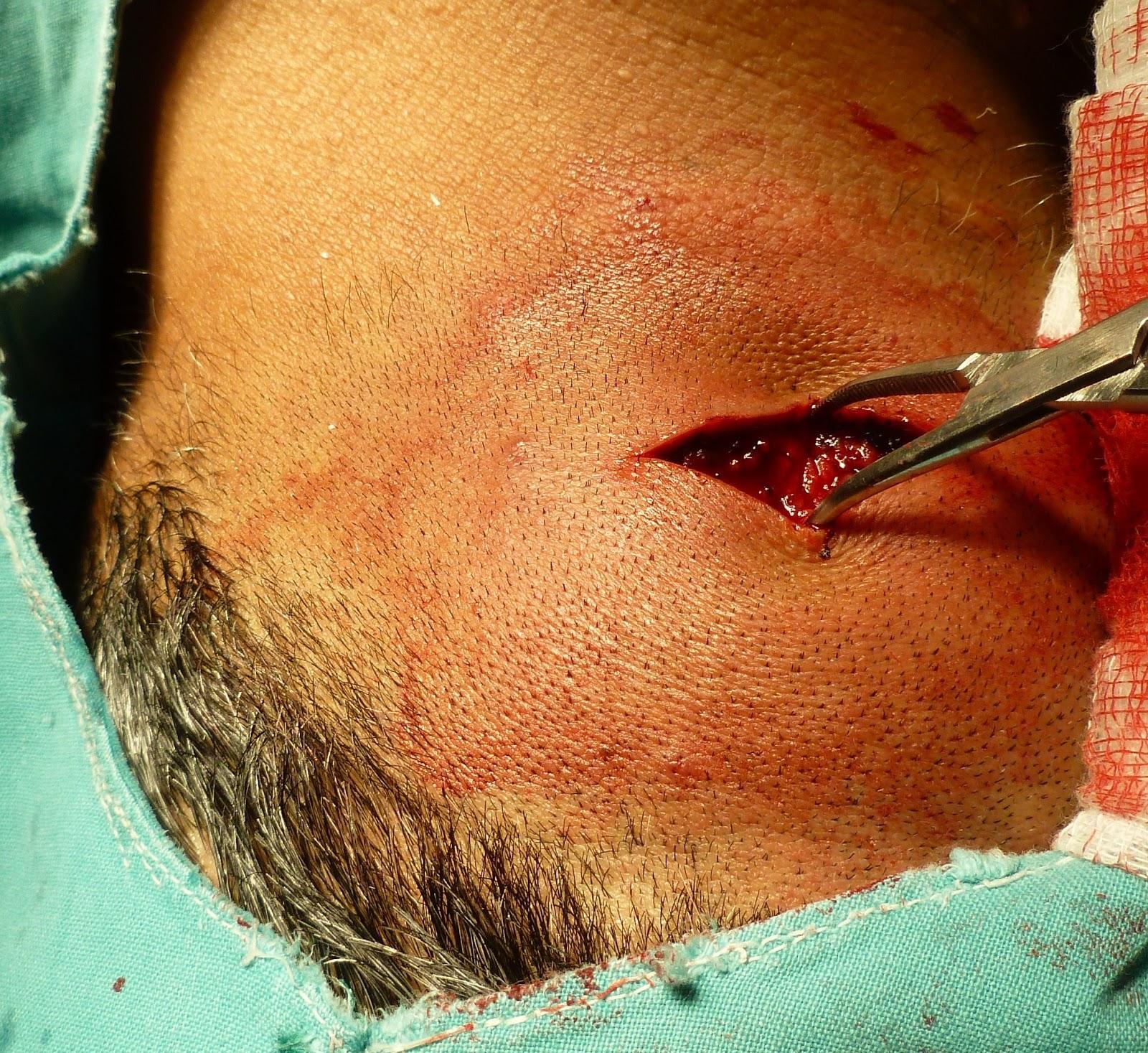 Revision Casos De Cirugia General Nodulacion En Nuca