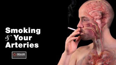 La persona que no puede dejar fumar