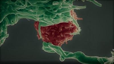 Scoperto meccanismo biologico blocca cancro