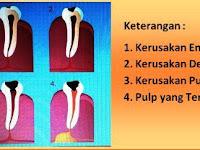 Penyebab, Cara Mencegah dan Cara Merawat Gigi Berlubang pada Anak-Anak