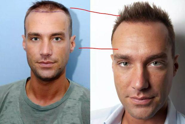 "نتيجة بحث الصور عن Celebrity Hair Transplants - Undergoing Cosmetic Procedures As a Public Figure"""