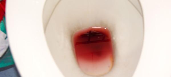 tipos de heces sangre
