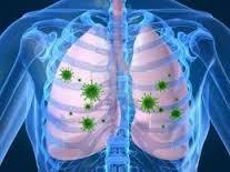 Obat Tbc Alami, Obat Tbc Kelenjar, Obat Tbc Herbal, Obat Tbc Tulang, Obat Tbc Paru, Obat Tbc Kelenjar Pada Anak, Obat Tbc Anak, Obat Tbc Tulang Belakang,