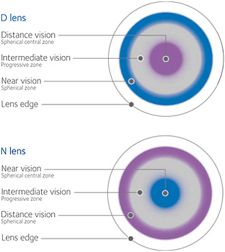1eb5735499 patient (briefly) because it can really set expectations to an appropriate  place. Multifocal lenses DON T work like progressive or bifocal ...