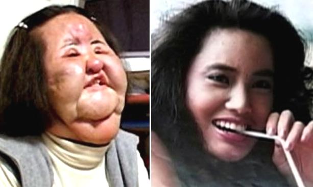 Lima Kisah Manusia Jadi Buruk Rupa Setelah Gagal Total Saat Operasi Plastik