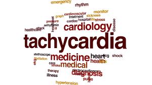 tachycardia-www.healthnote25.com