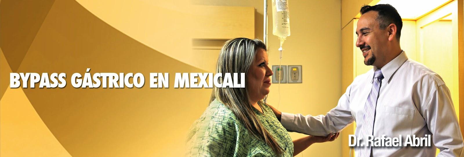 Cirugia para bajar de peso en mexico