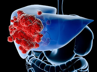 cancer hepatocelular