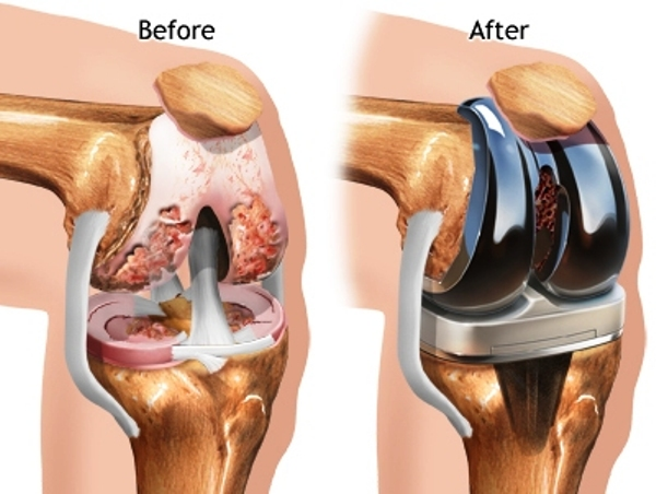 Knee Joint Replacement: The Prosthesis
