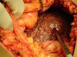 Que es la enfermedad de la cirrosis
