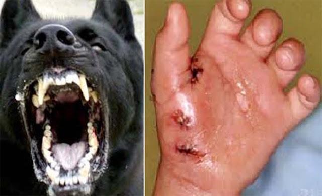Kes Penyakit Anjing Gila(Rabies) di Sarawak,Malaysia