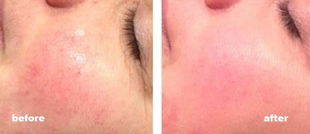 Before and after Skin Treatment Pics