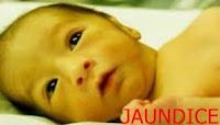 नवजात शिशु में जॉन्डिस (पीलिया) , JAUNDICE NEWBORN BOBY