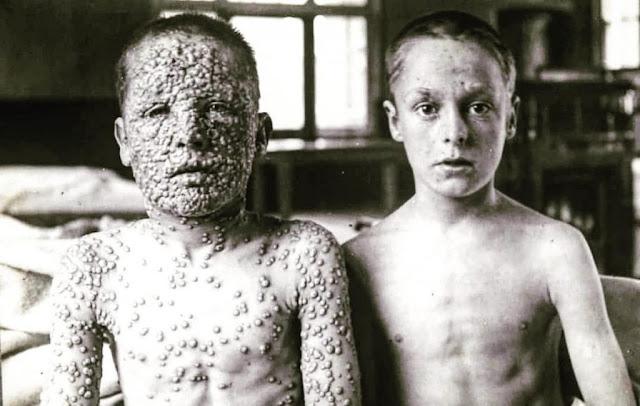 Реальные последствия антипрививочников — Великобритания, 1900-й год