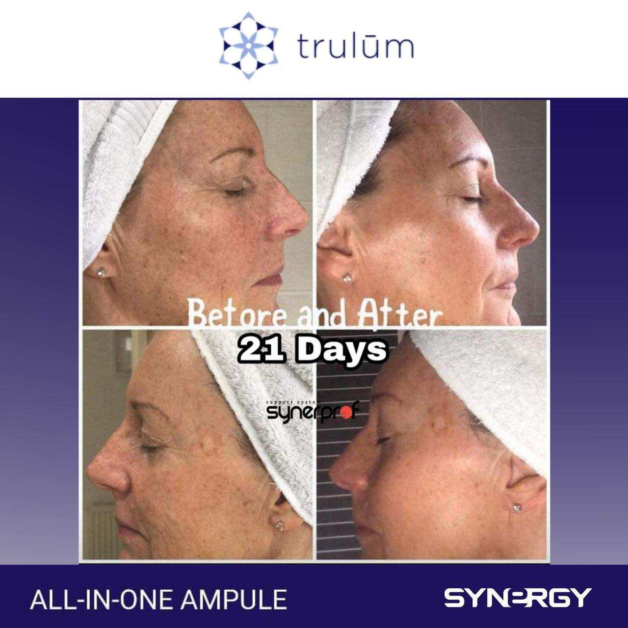 Jual Trulum All In One Ampoule Di Darul Imarah WA: 08112338376